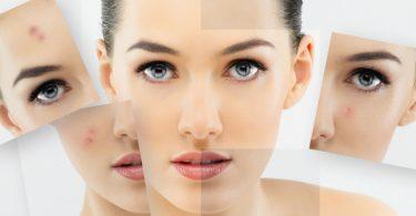 Сделать внешний вид своего лица более свежим и даже светлым стремятся многие женщины.